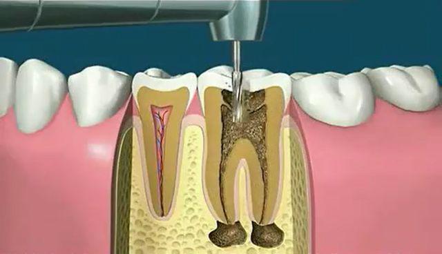 """健康公开课:小洞不补大洞受苦 如何拯救""""腐败""""的牙齿?"""