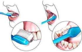 这么多年你真的会刷牙吗?