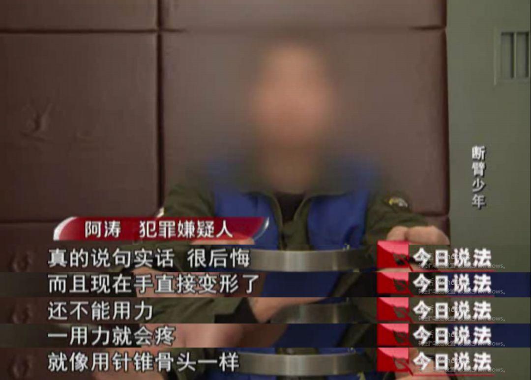 犯罪团伙招募少年入伙 将其手或脚砸断进行碰瓷