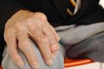 世界关节炎日:患类风湿性关节炎要忌口吗