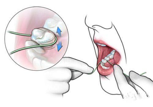 """健康公开课:天天塞牙?使用牙线的""""三步走""""战略送给你"""