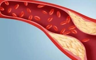 美国一项新研究:按时吃早饭动脉硬化少