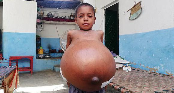九岁男孩肚子膨胀到沙滩球三倍大