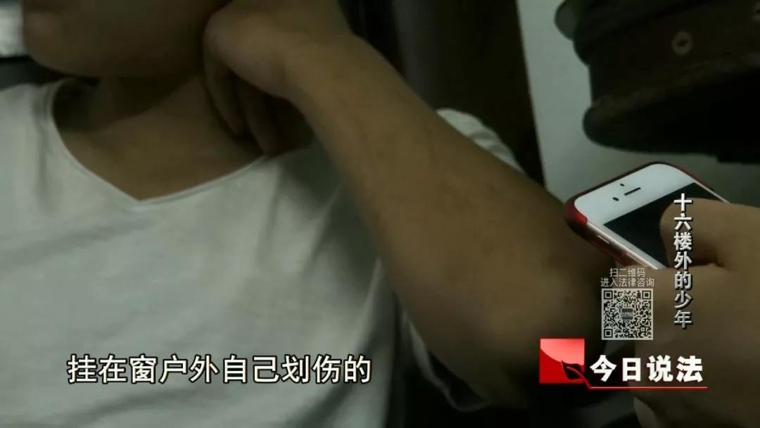 记者一个月后找到小李时,他手臂划痕的痕迹(作者供图)