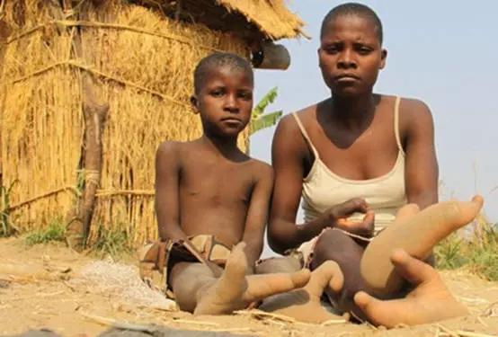 非洲神秘鸵鸟人部落 这里的人们只有两个脚指头