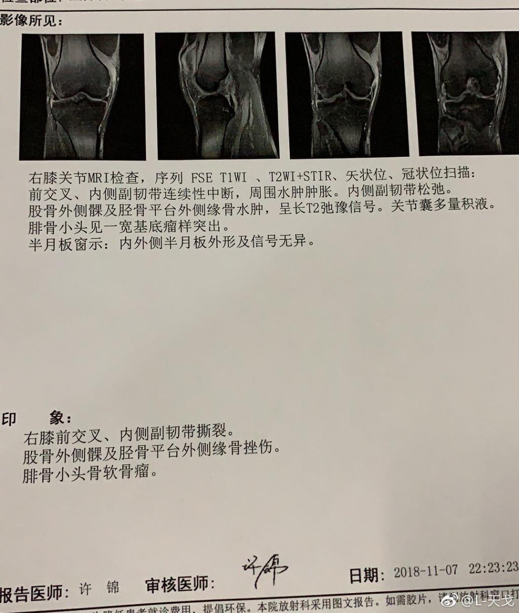 膝盖90度扭伤 八一96小将缺诊韧带撕裂:不敢看动图