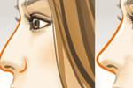 隆鼻多久可恢复?别忽视这3种后遗症