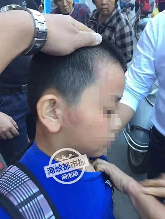 福建12岁学生被托管班老板打成脑震荡 警方已介入