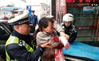 女子工厂工作发生意外手腕严重受伤 绵阳交警紧急
