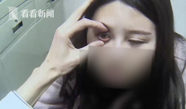 女子割雙眼皮后眼睛漏光又發炎 院方:可能熬夜造成