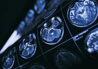 失重状态大脑会如何变化?脸部圆胖腿变纤瘦视觉