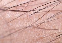人体毛发为何如此分布?或许是因为一种特殊蛋白