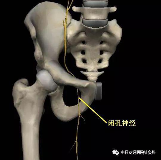 图为闭孔神经从骨盆穿出示意图