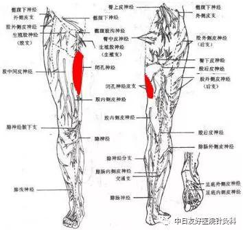 图为下肢皮神经分布图(红色区域为闭孔神经皮支分布区)