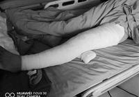 高三女孩80%皮肤烧伤 父亲割皮救女谎称在外打工