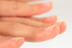 指甲上有竖纹是怎么回事?3个表现多重视