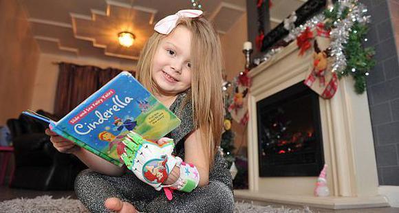 英6岁女童先天手指畸形 3D机械手弥补遗