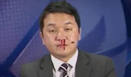 韩国解说员镜头前边流鼻血边主持节目 吓坏搭档