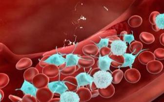 血栓有九个风险因素 在这五个时刻喝水防血栓