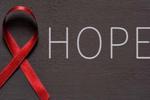 又近一步!美国大学研究根治HIV方法
