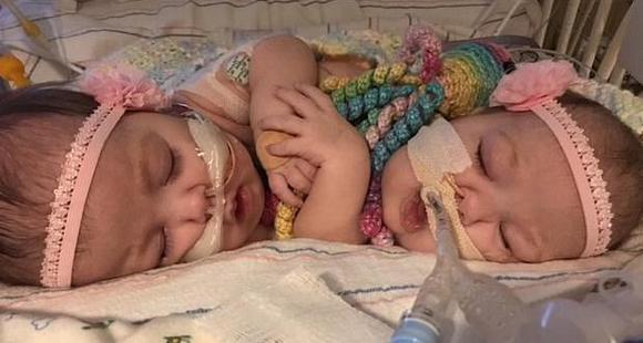 连体婴经历7台手术成功分离 与家人团聚