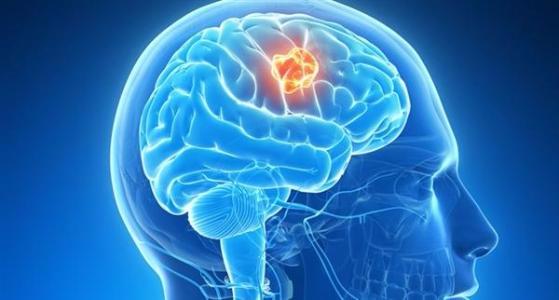 警惕!中年压力大脑子会变小 记忆力下降