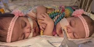 连体婴经历7台手术成功分离