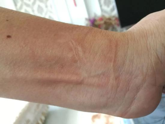 ?陈书昌的左手腕有多道明显疤痕,他称是当年试图自杀以证清白留下的