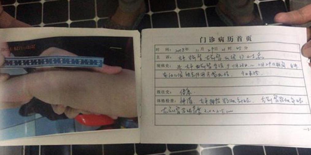 皇姑区多名幼童被针扎虐待 仨教师被刑拘