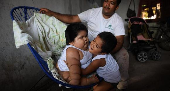 10个月大婴儿重达56斤 随时有生命危险