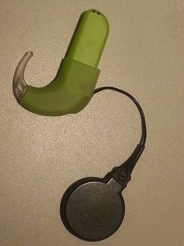 急寻20万耳蜗刷爆朋友圈?人工耳蜗到底是什么?