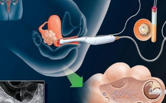 孕早期阴式B超检查会导致流产?对不起!你在瞎说