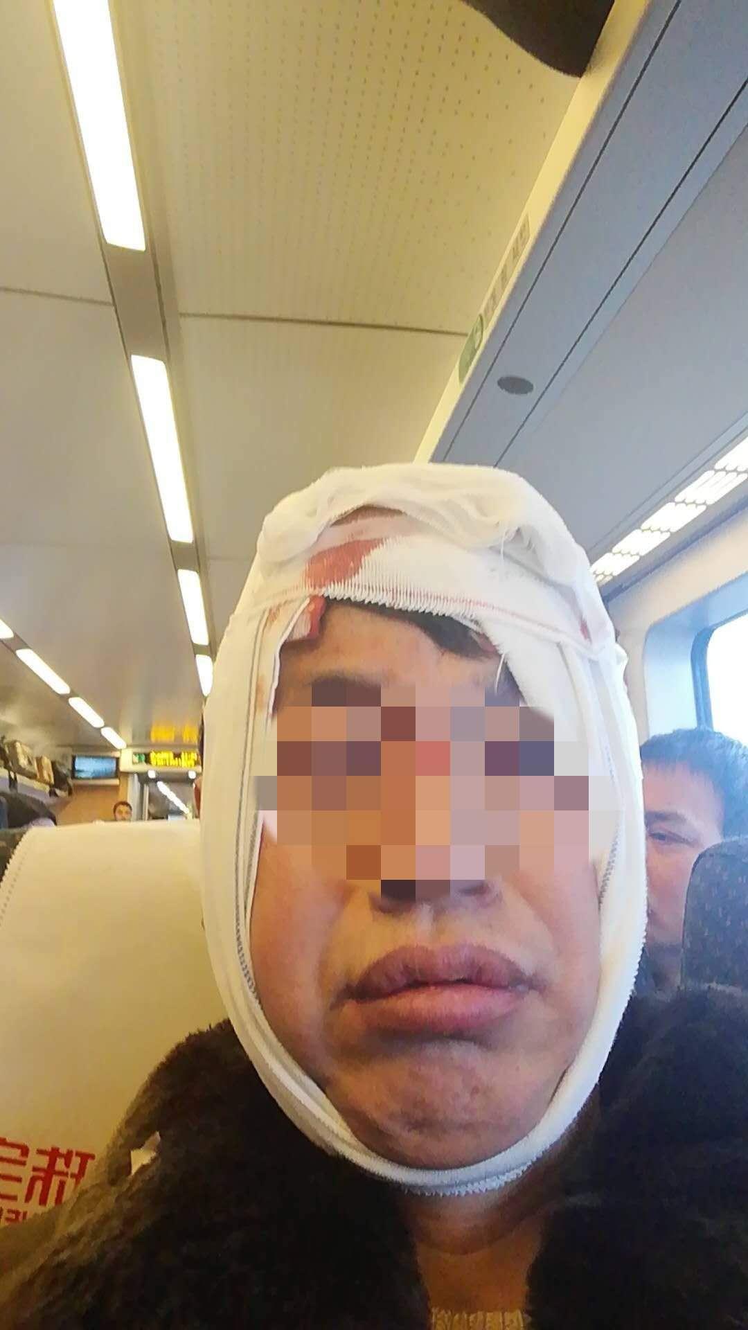 男子乘动车被行李箱砸破头 铁路部门:箱主人已赔偿