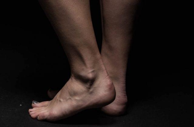 脚踝易受3种伤病侵袭 5个方法让它变强