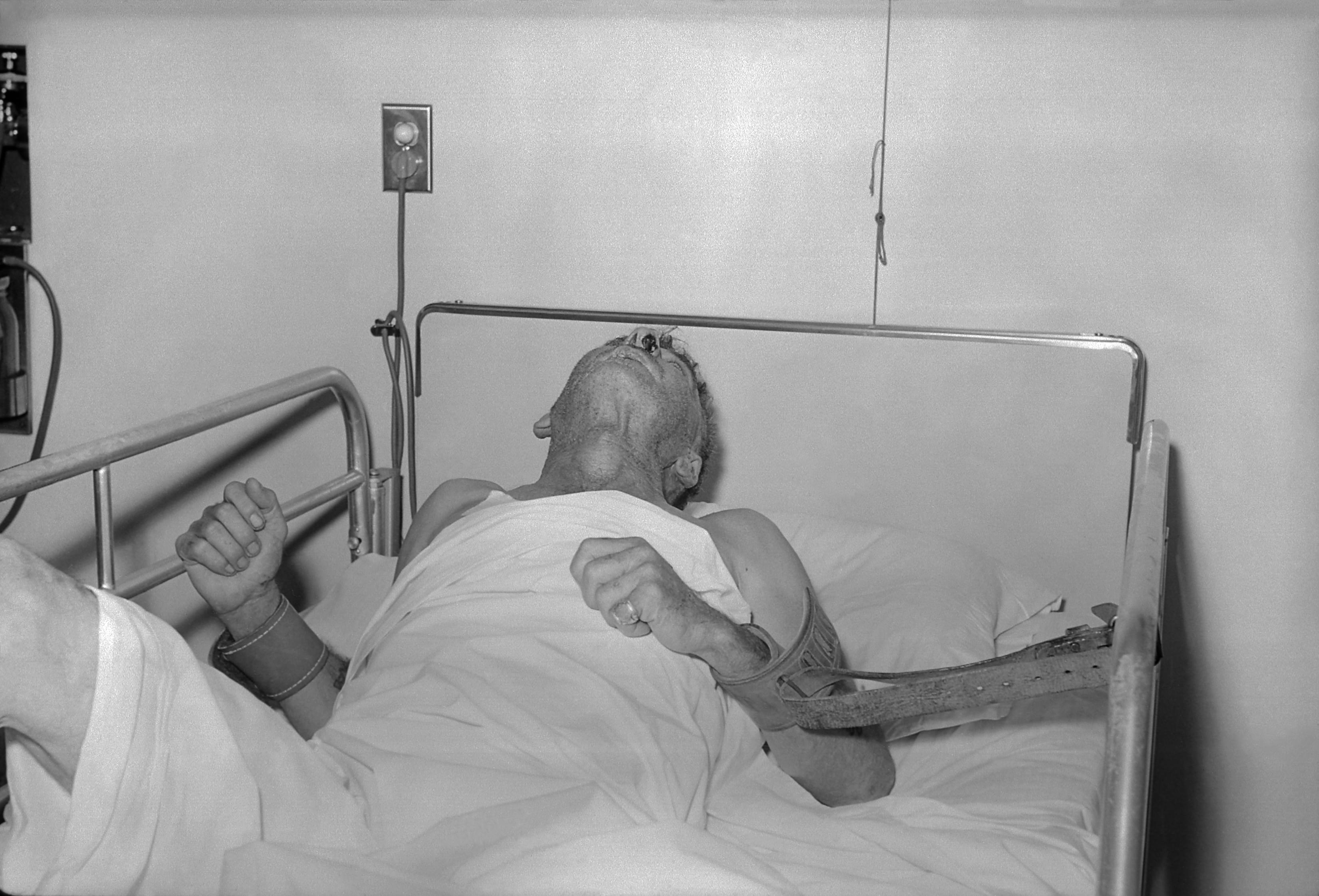 1959年拍摄的一位狂犬病病人的最后时光。狂犬病病人的唾液中含有病毒,可以通过咬人造成传染/wikipedia