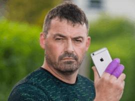 英国男子称iPhone7在接电话时爆炸:幸好手没残