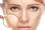 脸上斑点与疾病相关 这些偏方来帮你