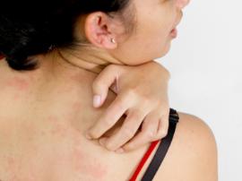 冬季皮肤瘙痒怎么办?6大方法巧止痒