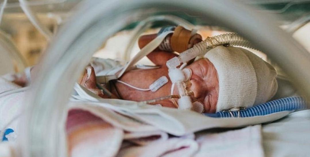 澳母亲记录早产儿求生