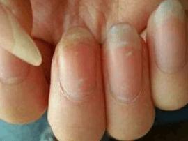 指甲上有白色斑点是怎么回事 指甲白斑原因