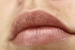 秋冬嘴唇干裂 切忌不要用舌头去舔