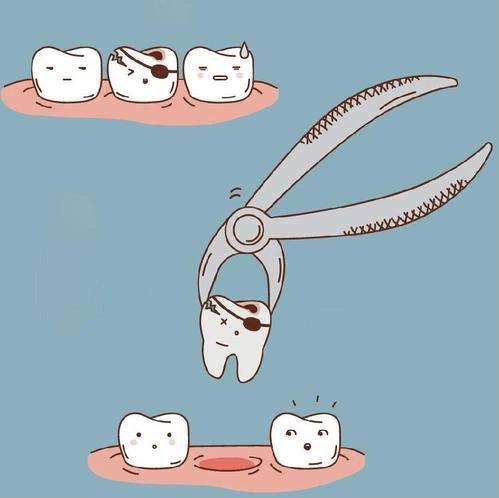 长智齿就一定要拔掉吗?拔智齿须知这六件事