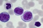 急性髓系白血病的小辫子 被科学家抓住了