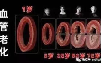 清理血管的特效菜 30岁后一定要多吃!