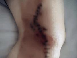女子养生馆治疗静脉曲张 被涂氢氧化钠致血管爆裂
