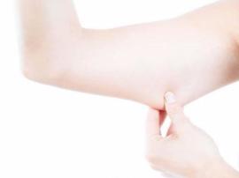 手臂上有赘肉很难看怎么办?艾灸来减掉多余的脂肪