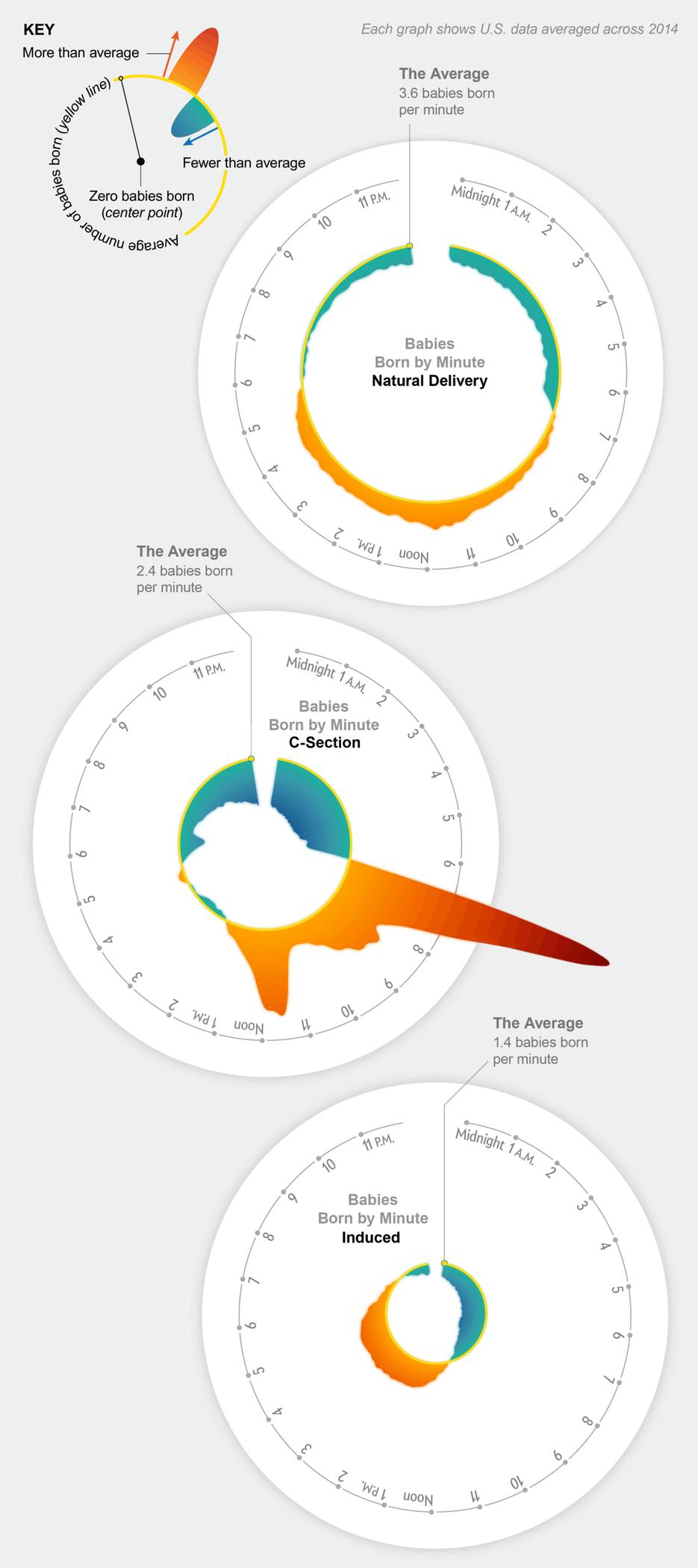 为何美国大多数婴儿生于早上8:00 和剖腹产有关?