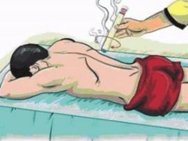 泰州一诊所刮痧刮断患者肌腱 双方各担责一半