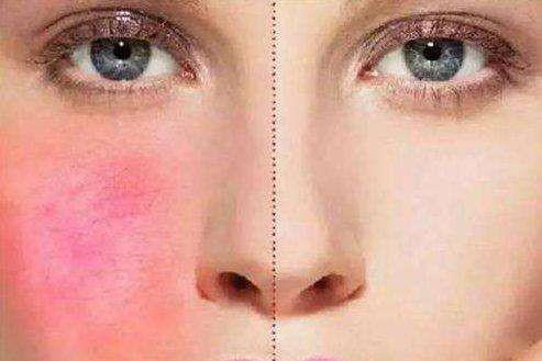 皮肤救星一秒变灾星  激素有哪些套路?