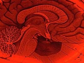 """心灵超能力:你若看到大脑变化 可让你""""忘掉""""疼痛"""